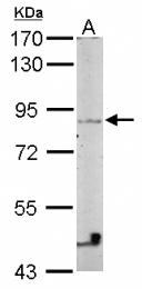 GTX116241 - VEZT (Vezatin)