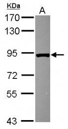 GTX116260 - VPS35 / MEM3