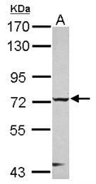 GTX116262 - CHFR / RNF196