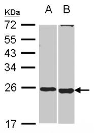 GTX116268 - SOHLH2 / TEB1