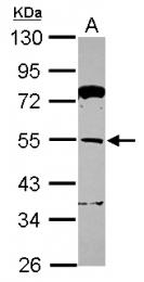 GTX116304 - TRIM62