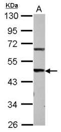 GTX116308 - STEAP3 / TSAP6