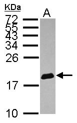 GTX116315 - EIF4EBP1 / 4E-BP1