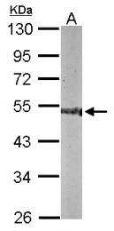 GTX116375 - CNDP2