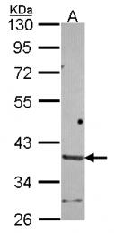 GTX116393 - Brain link protein 1 / BRAL1