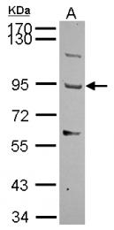 GTX116397 - THSD1 / TMTSP