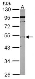 GTX116402 - SLC25A23 / SCAMC3