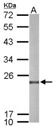 GTX116414 - Peroxiredoxin-4 / PRDX4