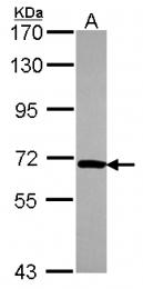 GTX116419 - NOP5 / NOP58