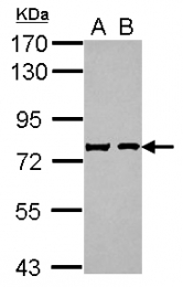 GTX116446 - Secretogranin-2 (SCG2)
