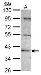 GTX116476 - C2CD2