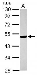 GTX116528 - ILKAP