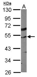 GTX116551 - alpha Tubulin / TUBA1C / TUBA6