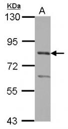 GTX116570 - PRMT7