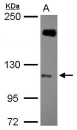 GTX116687 - SH3RF1 / RNF142