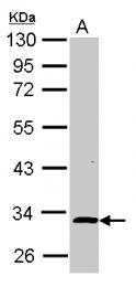 GTX116727 - NIF3L1
