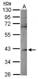 GTX116738 - Ribokinase / RBKS