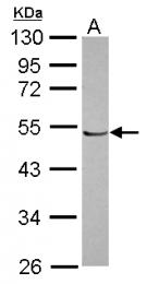 GTX116763 - POLR1E