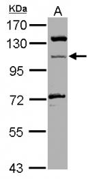 GTX116770 - MICAL1