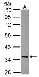 GTX116830 - Ketosamine-3-kinase