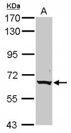 GTX116893 - CLPTM1-like protein