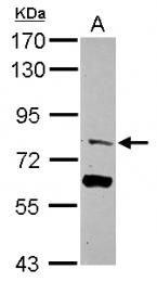 GTX116911 - TRIM56 / RNF109