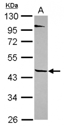 GTX116922 - Tektin-1 (TEKT1)
