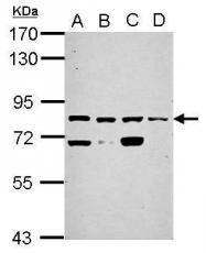 GTX117085 - Kelch-like 1 protein