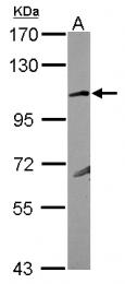 GTX117163 - Glutamate receptor KA1 / GRIK4