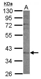 GTX117184 - CYP2F1
