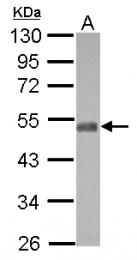 GTX117233 - NFIX