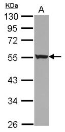 GTX117239 - Cytokeratin 72