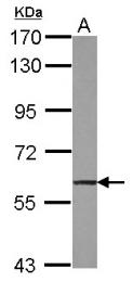 GTX117276 - TRIM47 / RNF100