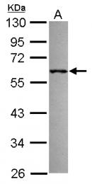 GTX117304 - TRIM69 / RNF36
