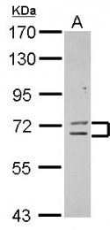 GTX117343 - ZNF182