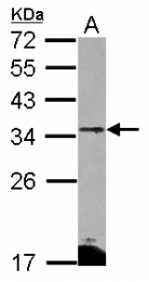 GTX117415 - CD274 / PDL1