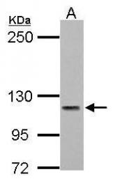 GTX117433 - ATP2B3 / PMCA3