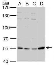 GTX117444 - Visfatin / NAMPT