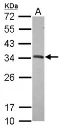 GTX117446 - CD274 / PDL1