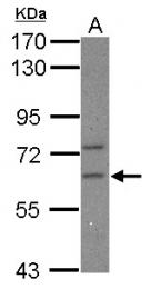 GTX117457 - CPEB2