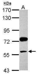 GTX117467 - Visfatin / NAMPT