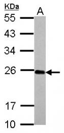 GTX117514 - Interleukin-17C / IL17C