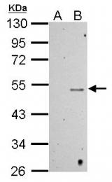 GTX117515 - TP53 / p53