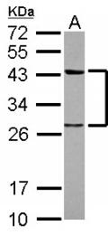 GTX117546 - Twinfilin-1 (TWF1)