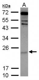 GTX117571 - Cytoglobin