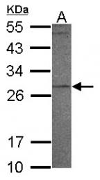 GTX117576 - PR3 / C-ANCA