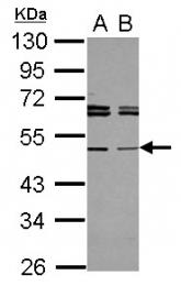 GTX117602 - Tapasin-related protein (TAPBPL)