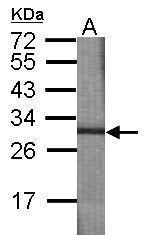 GTX117621 - CDC123