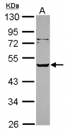 GTX117695 - SERPINA12