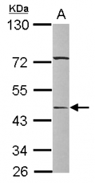 GTX117696 - SERPINA12